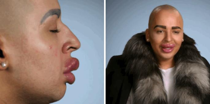 Een man geeft €150.000 uit om op Kim Kardashian te lijken. Tevergeefs!